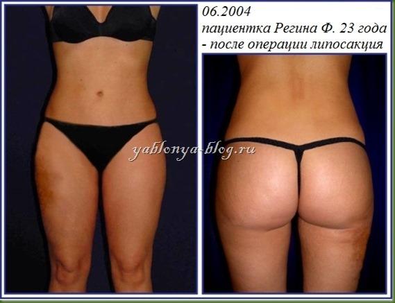 липосакция галифе фото до и после